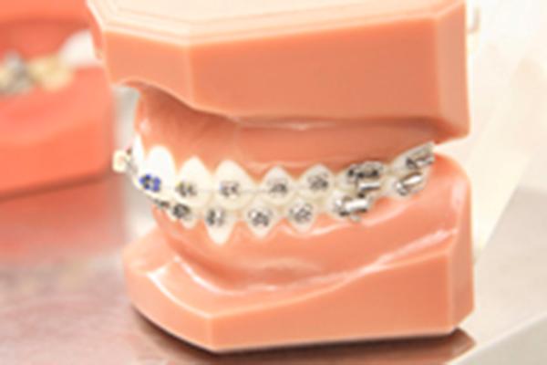 歯並びが気になる方へ【矯正治療】